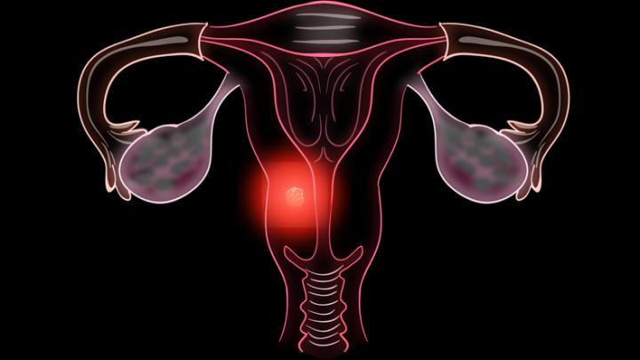 Какие могут быть последствия и осложнения после удаления матки?