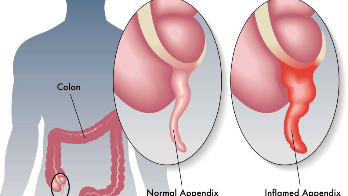 Можно ли курить после удаления аппендицита?