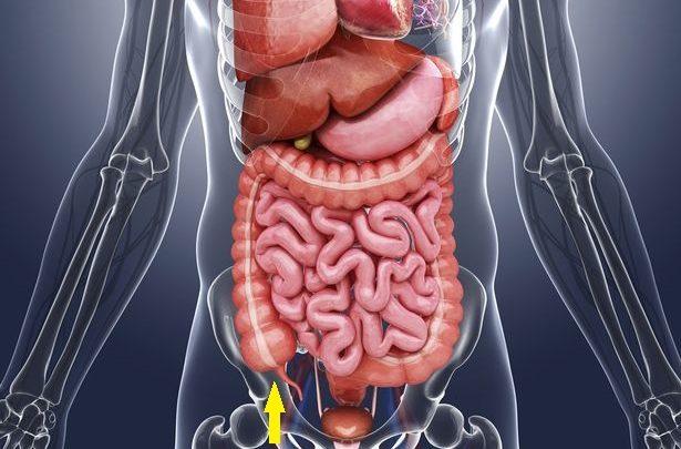 Особенности питания после удаления аппендицита