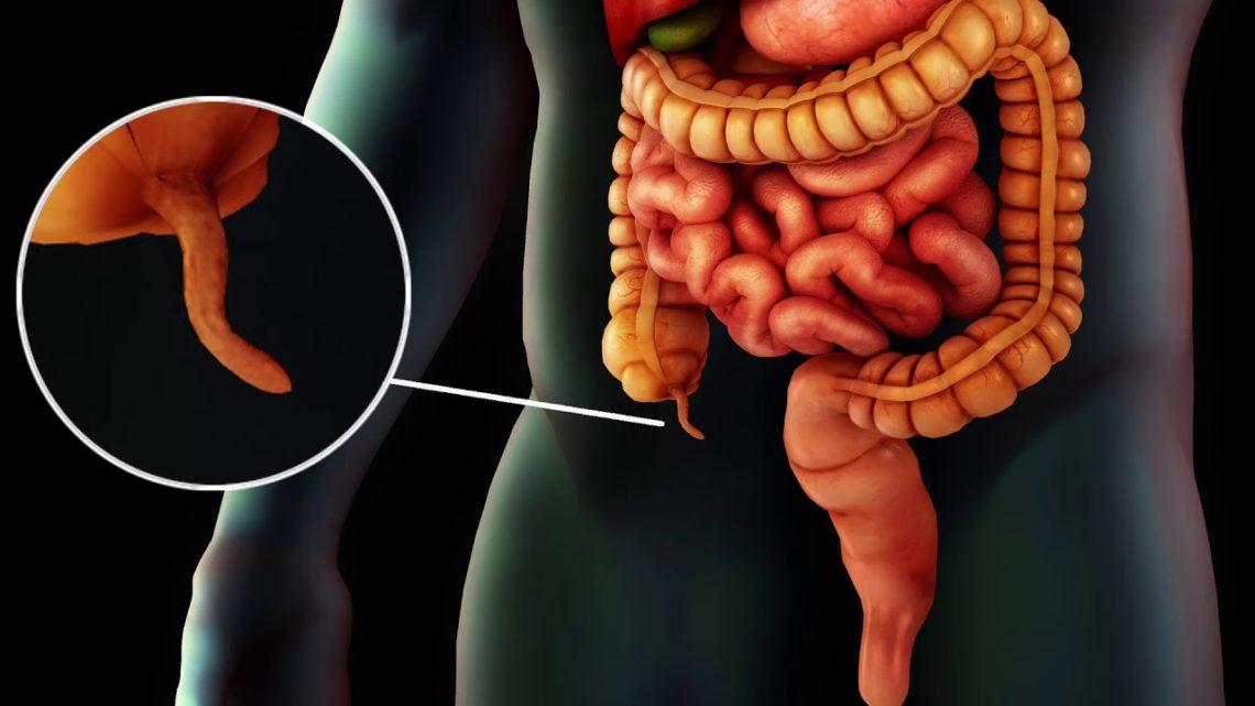 Аппендицит нарушение диеты