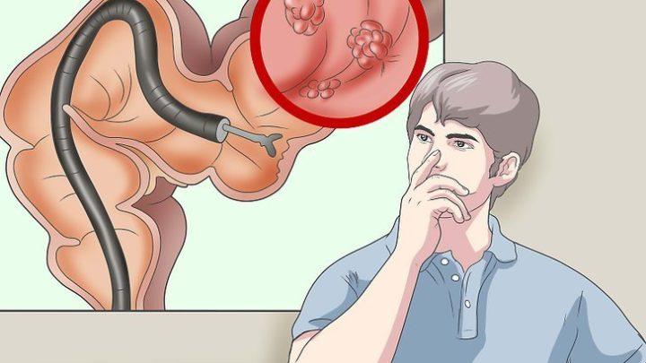 Можно ли сделать колоноскопию под наркозом?