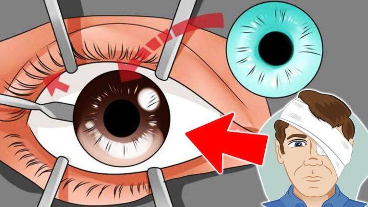 Птеригиум глаза после операции — меры предосторожности