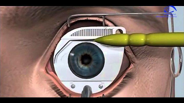 Укрепление сетчатки глаза лазером — ограничения после операции