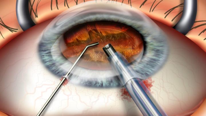 Замена хрусталика глаза: показания, методики, реабилитация